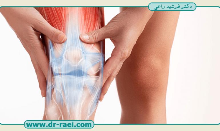 چه زمانی تعویض مفصل زانو ضروری است؟
