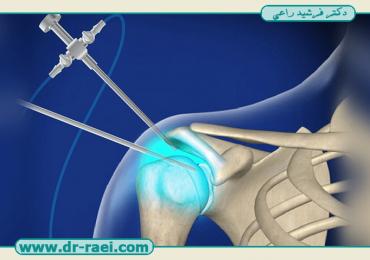 آرتروسکوپی شانه بهتر است یا جراحی شانه